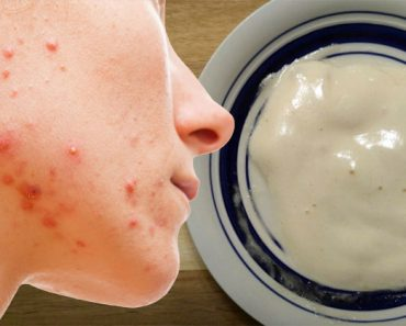 Esta mascarilla natural con ingredientes que tiene en casa ayudará a eliminar el acné y hará que tenga la piel radiante