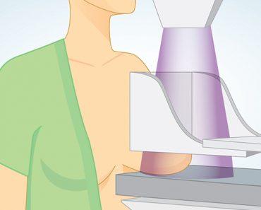 Japón tiene una tasa de cáncer de mama un 66% menor que la mayoría de países - este es el nutriente que falta en nuestra dieta