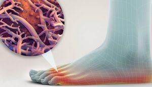 Lo que debe saber sobre las infecciones por hongos - Prevención y tratamiento
