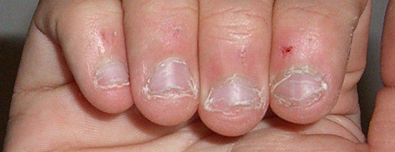 Morderse las uñas es un signo de ESTE rasgo de la personalidad
