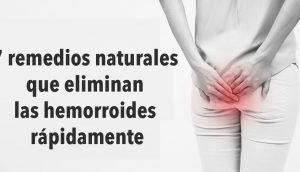 7 remedios naturales que eliminan las hemorroides rápidamente