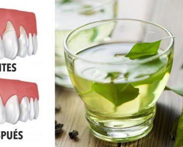 4 remedios naturales que le ayudarán a reparar la retracción de las encías