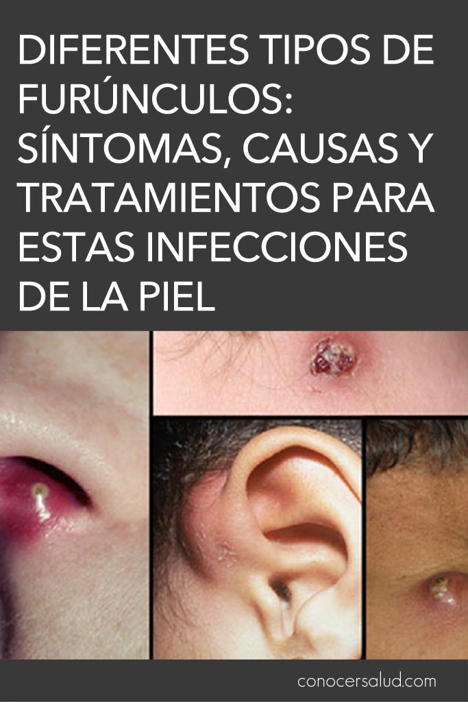 Diferentes tipos de furúnculos: síntomas, causas y