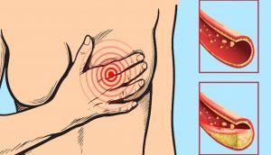 12 alimentos que debe consumir diariamente para tener las arterias limpias y no obstruidas