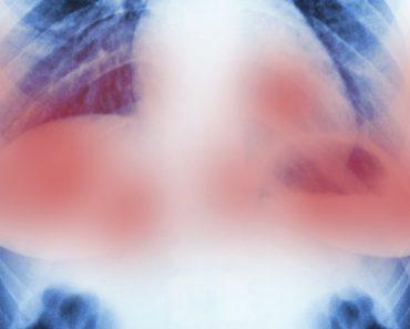 Científicos de Europa destruyen tumores de cáncer de mama en 11 días SIN quimioterapia