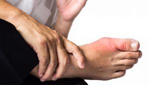 Gota: causas, síntomas y tratamientos