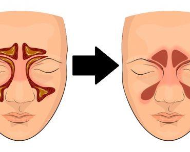 Cómo limpiar tus senos paranasales en 4 pasos con esta simple técnica