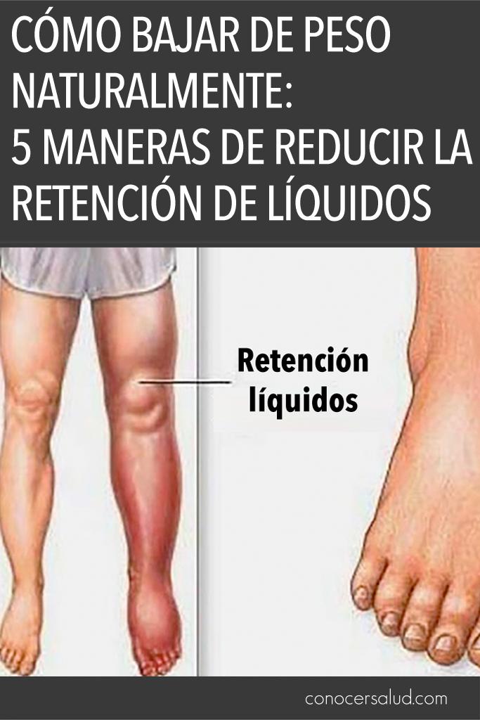 Cómo bajar de peso naturalmente: 5 maneras de reducir la retención de líquidos