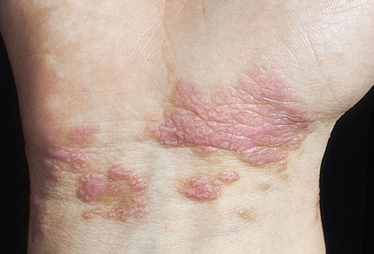 Lo que tu piel dice sobre tu salud: 8 afecciones de la piel y sus enfermedades relacionadas