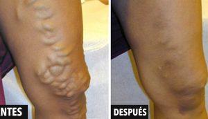 9 remedios que tratan las varices o venas varicosas sin cirugía