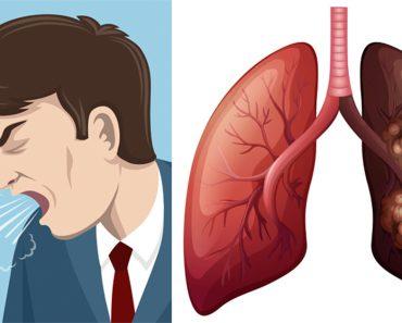 7 síntomas del cáncer de pulmón