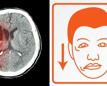 5 Síntomas de alerta de un derrame cerebral que nunca debe ignorar