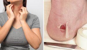 10 síntomas de que está tomando demasiado azúcar