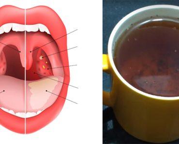 El té que cura la inflamación de garganta, las infecciones de los senos nasales y la gripe