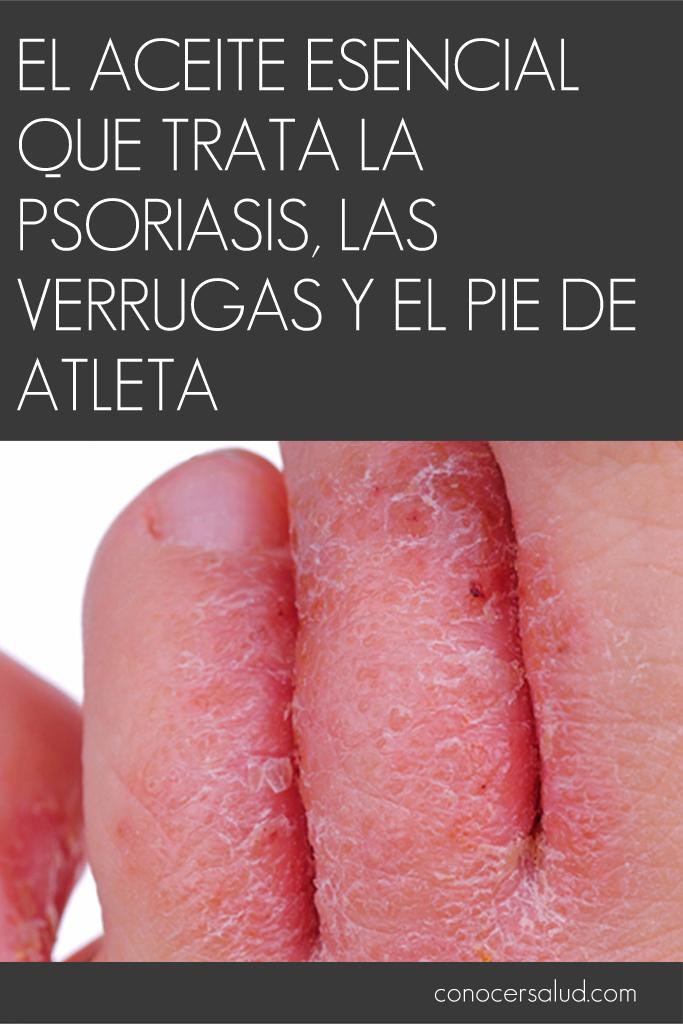 El aceite esencial que trata la psoriasis, las verrugas y el pie de atleta