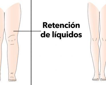 5 razones por las que su cuerpo retiene líquidos (y cómo evitarlo)