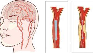 Evite un ataque al corazón o un derrame cerebral: 8 hábitos que nunca debe ignorar