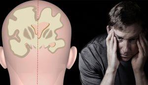4 hierbas que tratan la enfermedad de Alzheimer, la demencia y la depresión