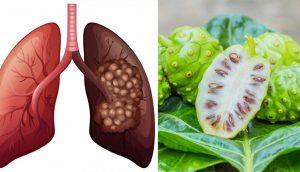 El extracto vegetal que mata las células cancerosas mejor que la quimioterapia, de acuerdo con una investigación
