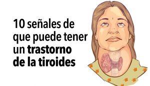 10 señales de que puede tener un trastorno de la tiroides
