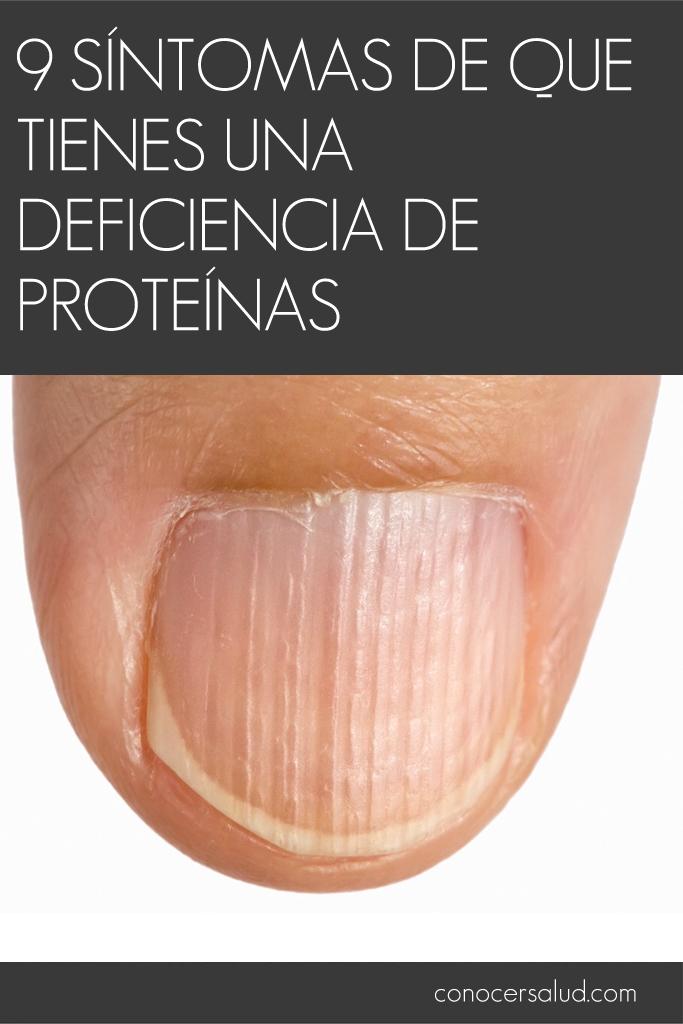9 síntomas de que tienes una deficiencia de proteínas