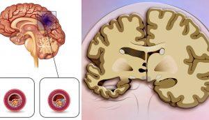 Un nuevo estudio halla que esta popular bebida triplica el riesgo de accidente cerebrovascular y demencia