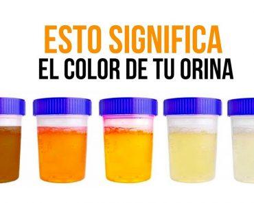 ¿De qué color es tu orina? Esto es lo que significa para tu salud…