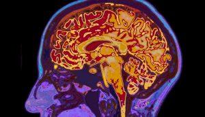 Antes de asumir que es demencia, asegúrese de no tener deficiencia en estas vitaminas o minerales