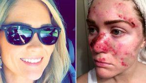 Una mujer comparte una selfie para ayudar a acabar con un hábito que casi la mata