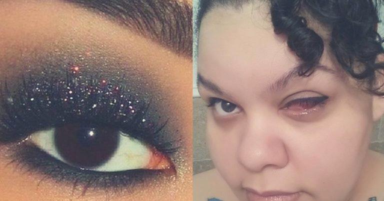 Esta madre perdió un ojo debido a un error común de maquillaje