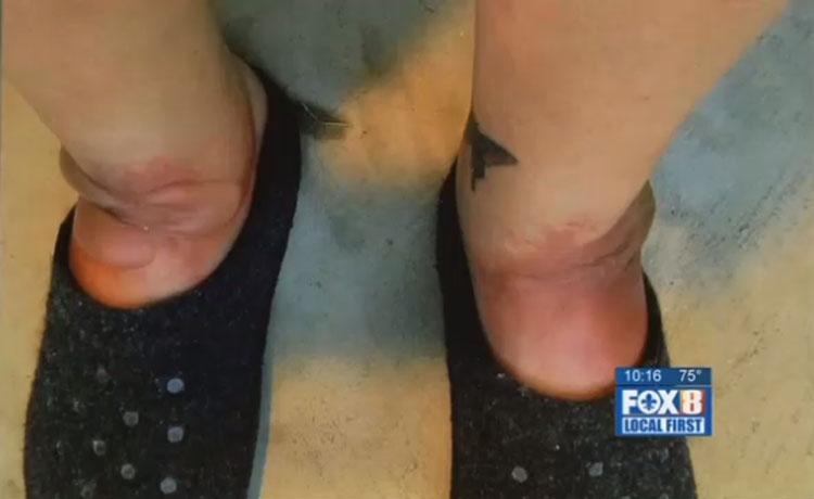 Esta madre casi pierde los pies después de usar este popular calzado