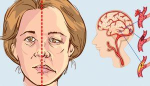 Mujer: Cómo saber si le va a dar un derrame cerebral días antes de que suceda