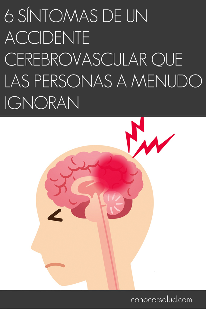 6 síntomas de un accidente cerebrovascular que las personas a menudo ignoran