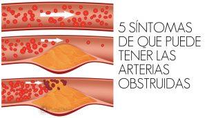 5 síntomas de que puede tener las arterias obstruidas