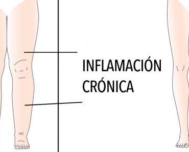 5 Razones por las que su cuerpo se inflama (y cómo evitarlo)