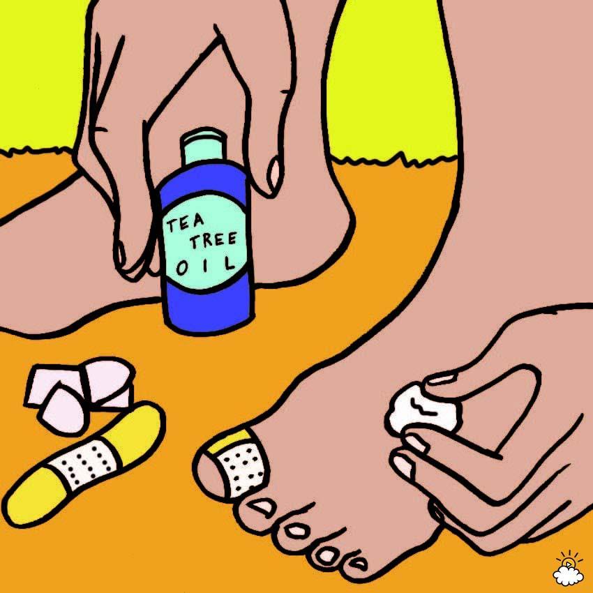 Uñas encarnadas de los pies: 6 Remedios caseros sorprendentemente efectivos