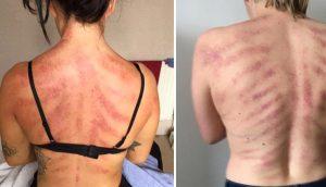 Esta mujer comparte el daño físico que su empleo origina en su espalda