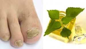 8 Usos saludables del aceite esencial de espinacardo