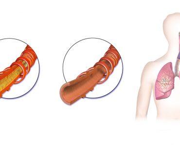 Cómo deshacerse de la flema y la mucosidad en el pecho y la garganta (alivio instantáneo)