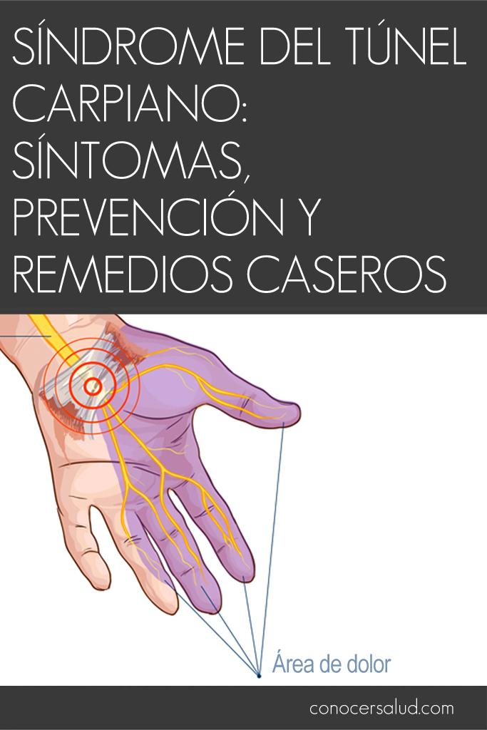 Síndrome del túnel carpiano: Síntomas, prevención y remedios caseros