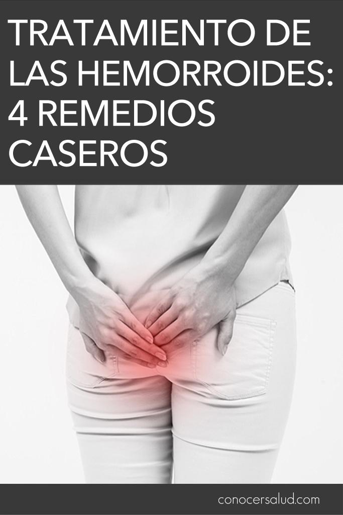 Tratamiento de las hemorroides: 4 remedios caseros