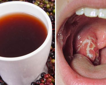 Faringitis estreptocócica: 10 remedios naturales