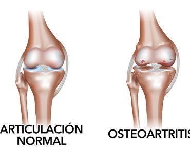 Tratamientos naturales para la osteoartritis (degeneración del cartílago articular)