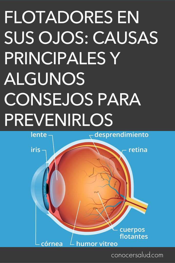 Flotadores en sus ojos: causas principales y algunos consejos para prevenirlos