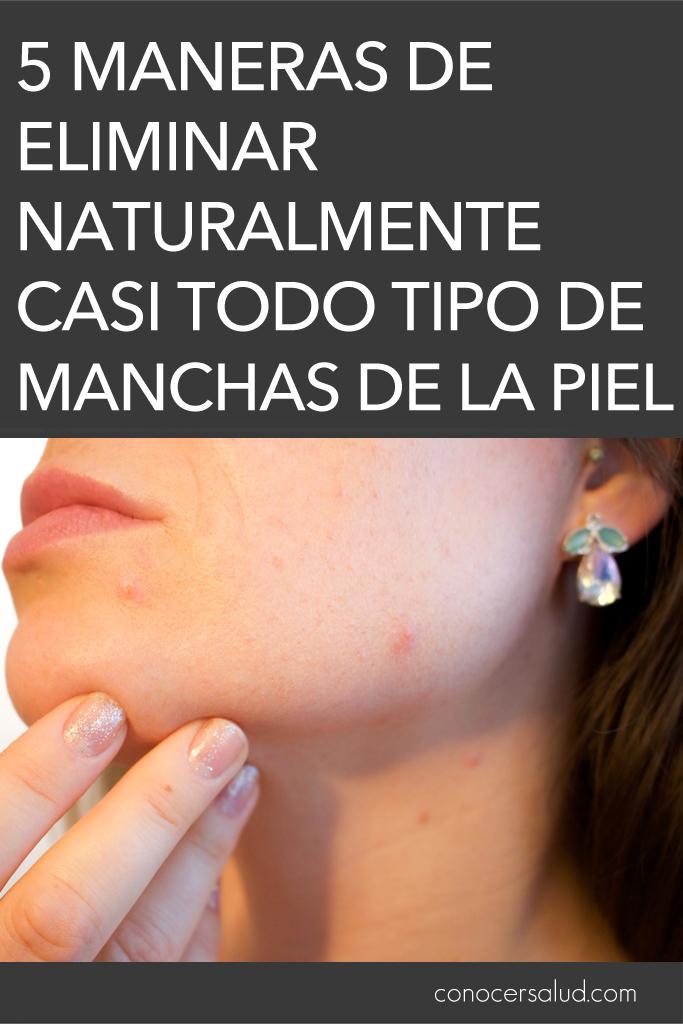 5 maneras de eliminar naturalmente casi todo tipo de manchas de la piel