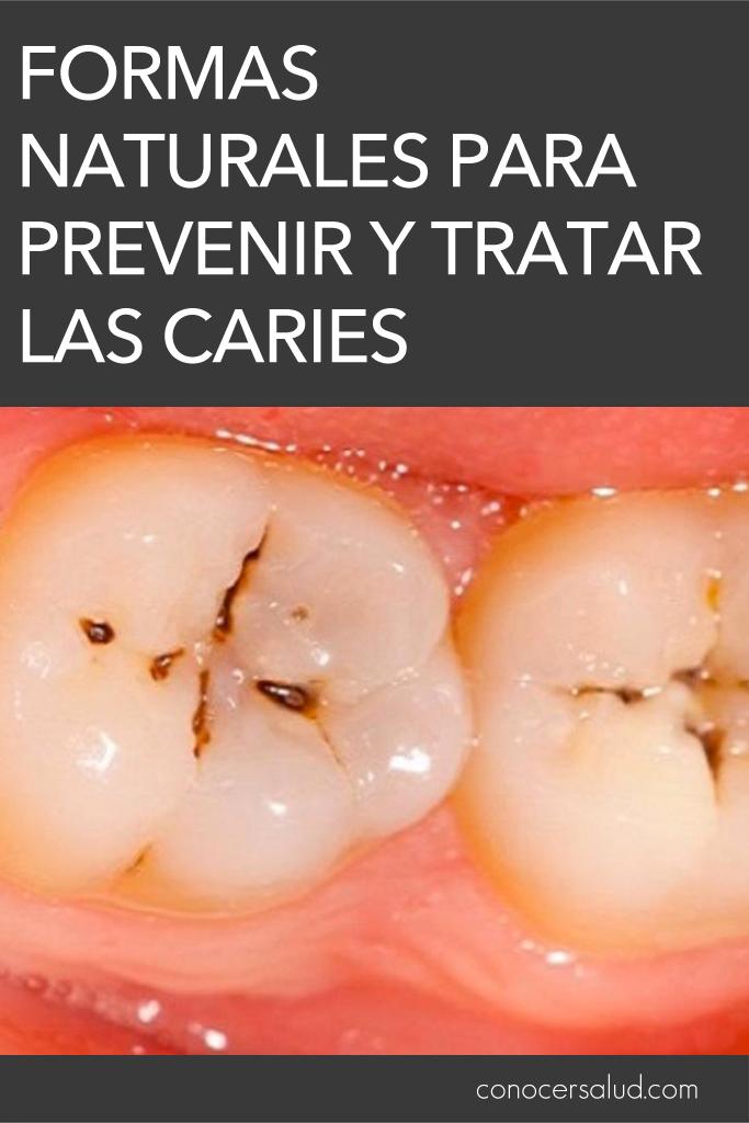 Formas naturales para prevenir y tratar las caries