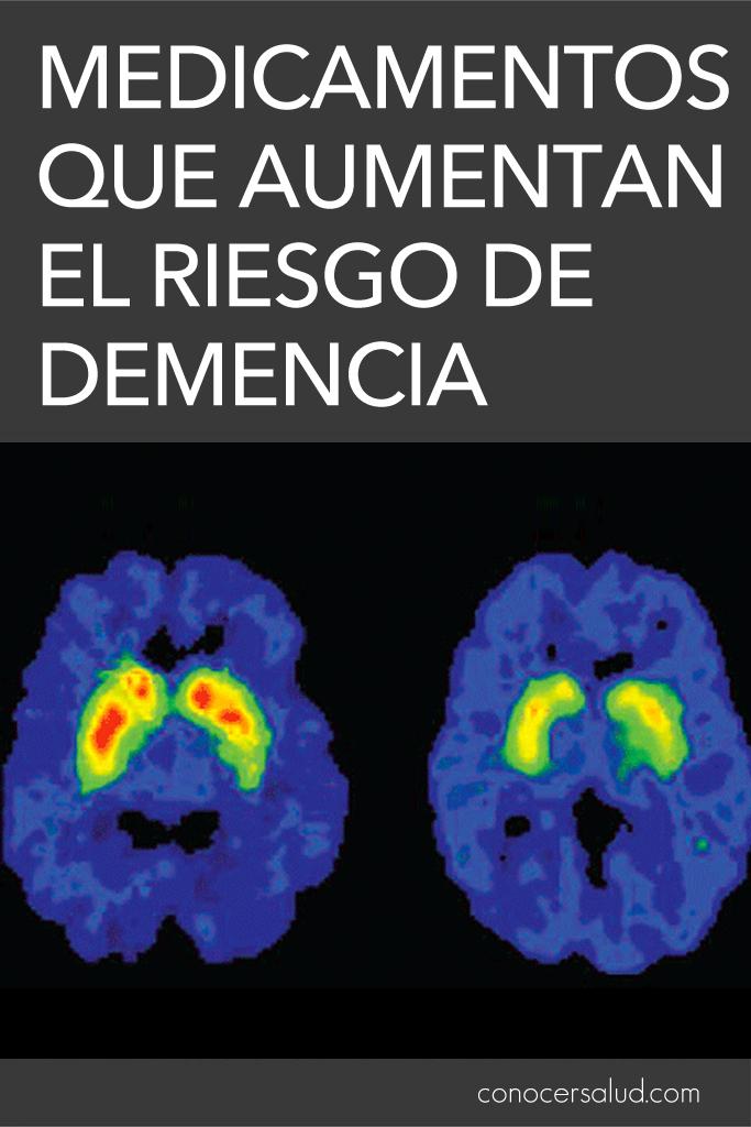 Medicamentos que aumentan el riesgo de demencia