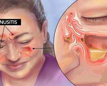 Estos aceites esenciales pueden aliviarle de la sinusitis