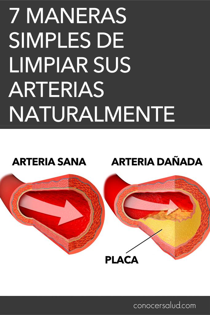 7 maneras simples de limpiar sus arterias naturalmente