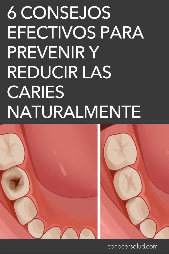 6 consejos efectivos para prevenir y reducir las caries naturalmente